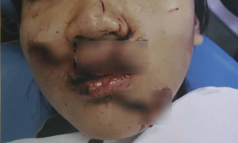 nữ sinh, Sài Gòn, tai nạn, Bệnh viện Nhi đồng 1