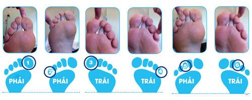 Mẹo kiểm tra biến chứng bàn chân tiểu đường tại nhà