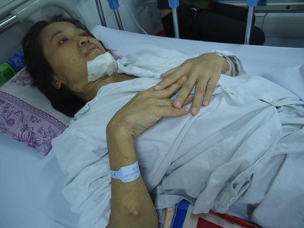 Người phụ nữ nghèo biến dạng đau đớn vì căn bệnh u xơ thần kinh