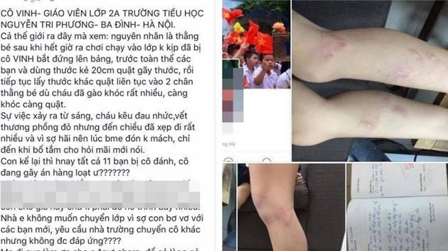 Cô giáo đánh học sinh bầm tím chân bị kỷ luật cảnh cáo