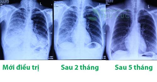 Ung thư phổi? Đừng vội bỏ cuộc