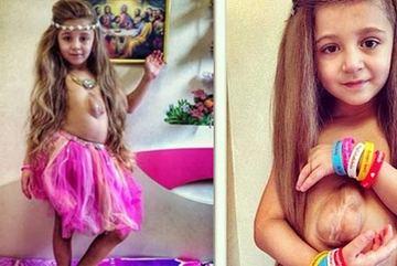 Cận cảnh trái tim ngoài lồng ngực của cô bé 7 tuổi người Mỹ