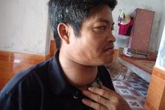Người đàn ông câm điếc bất lực vì không tiền phẫu thuật bướu cổ