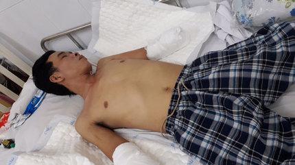 Xót xa chàng trai trụ cột gia đình bị phỏng nặng