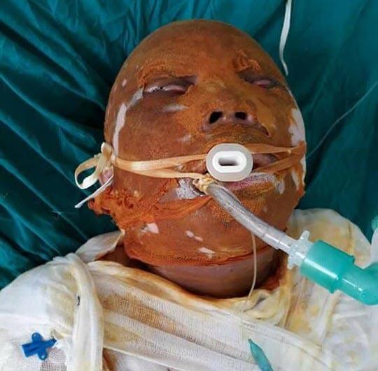 Bị bỏng nặng, người phụ nữ nghèo nguy kịch tính mạng