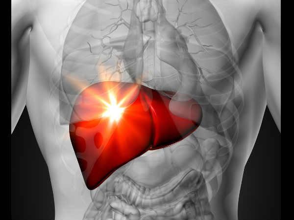 bệnh gan nhiễm mỡ, gan nhiễm mỡ, dấu hiệu gan nhiễm mỡ
