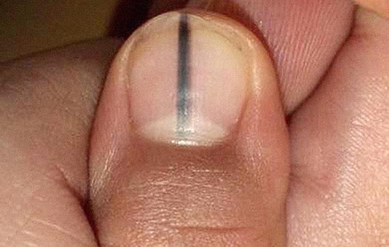 Móng tay có sọc đen, đau đớn chẩn đoán dấu hiệu u ác tính - VietNamNet