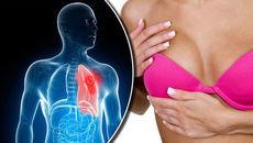 Triệu chứng nhận biết 3 bệnh ung thư phổ biến nhất