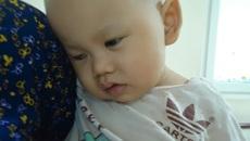 Ung thư võng mạc, bé trai nguy cơ mù cả hai mắt