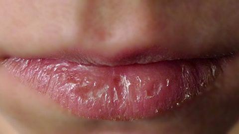 Chăm sóc môi