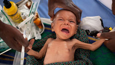 3 giai đoạn biểu hiện chứng tỏ bé đang bị suy dinh dưỡng