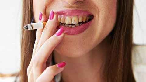 Nguyên nhân khiến răng bạn kém trắng sáng rạng rỡ