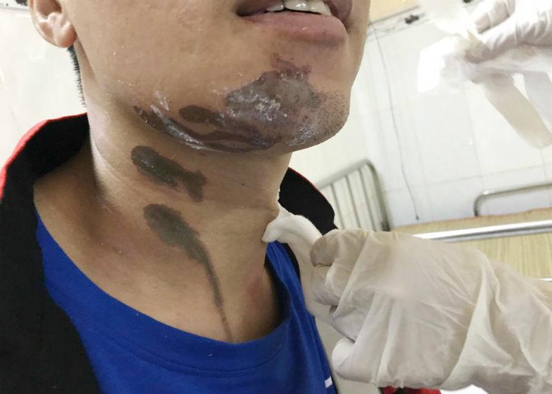 bỏng, hóa chất, hóa chất tẩy rửa, bệnh viện Trưng Vương