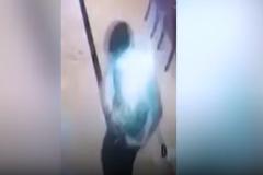 Smartphone nổ tung trên túi áo, người đàn ông ngã gục