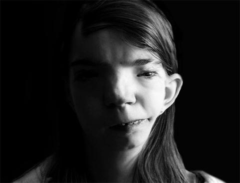 Cô gái Mỹ nói thay lời trẻ em nhiễm chất độc da cam ở VN