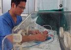 Những bé sinh non sống sót kỳ diệu ở Việt Nam