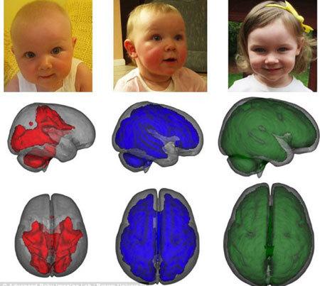 Sữa mẹ giúp não trẻ phát triển 30% hơn sữa bột