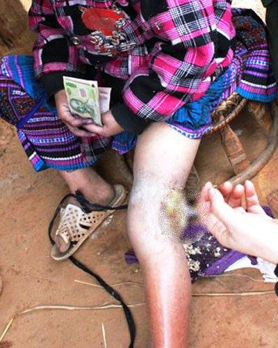 Những người bị dòi ăn da thịt hy hữu ở Việt Nam