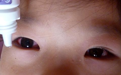 Đau mắt đỏ, cả xóm trọ nhìn nhau qua kính đen