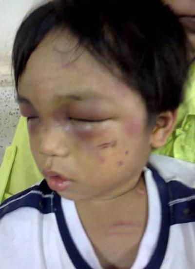 3 tuổi, đánh đập, ăn xin, TP.HCM
