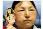 Thiếu nữ biến thành bà già vì phẫu thuật thẩm mỹ