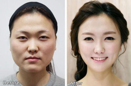 Xinh đẹp bất ngờ nhờ thẩm mỹ viện Hàn Quốc