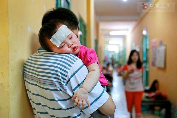 Những hình ảnh rớt nước mắt ở tâm dịch sởi
