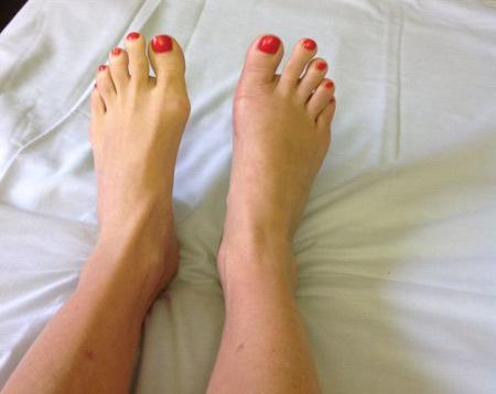 mốt, cắt ngón chân, phẫu thuật thẩm mỹ