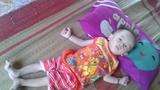 Xót xa cháu bé bị bệnh tim bẩm sinh, 14 tháng chỉ nặng 5kg