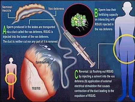 Sắp có thuốc tiêm tránh thai đầu tiên cho đàn ông