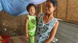 Xót lòng bé 3 tuổi bị bệnh tim, bại não và đục thủy tinh thể