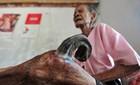 Nam Định: Cụ bà 97 tuổi mọc sừng 20cm