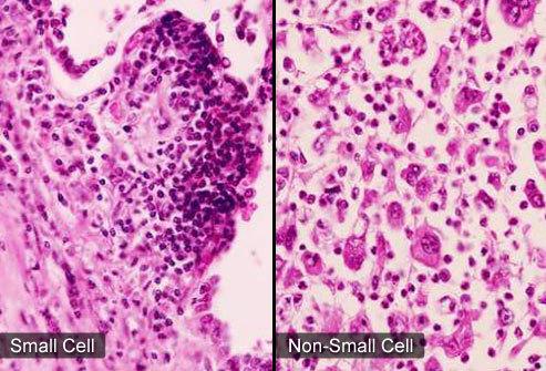 Làm thế nào để phát hiện và điều trị bệnh ung thư phổi?