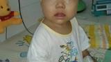 Xót xa bé 10 tháng tuổi bị ung thư thận