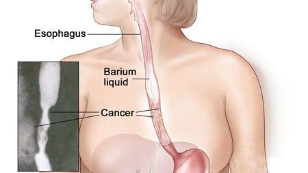 Ung thư thực quản vẫn có thể sống trên 5 năm