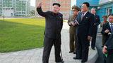 Tại sao Kim Jong-un lại phải chống gậy?