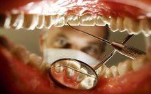 Bao lâu chúng ta nên đi khám răng một lần?