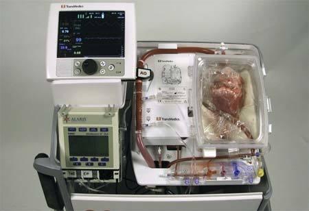 Lần đầu tiên cấy ghép tim 'chết' cho người sống