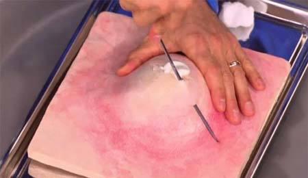 Cách loại bỏ mụn tốt nhất không gây hỏng da