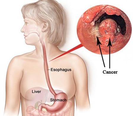 Ung thư thực quản: Hóa trị giúp kéo dài thời gian sống