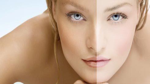 Hiểm họa từ liệu pháp tẩy trắng da như Ngọc Trinh