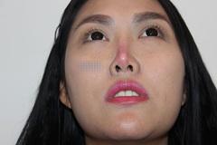 Phi Thanh Vân hứng chịu hậu quả đáng sợ của phẫu thuật thẩm mỹ
