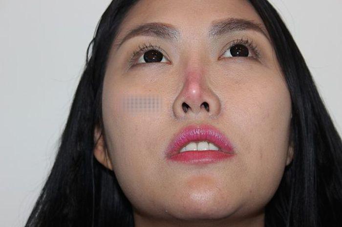 Phi Thanh Vân, teo mũi, biến chứng, phẫu thuật thẩm mỹ, da trắng