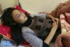 4 nữ sinh đánh bạn trong khách sạn bị xếp hạnh kiểm yếu