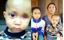 Lời khẩn cầu 2 con thơ 'thấy ánh mặt trời' của mẹ nghèo