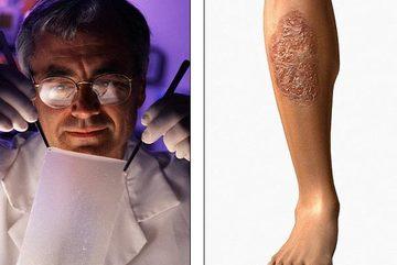 Chữa vết thương hiệu quả hơn bằng da... người chết