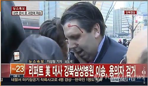 Đại sứ Mỹ tại Soeul bị tấn công