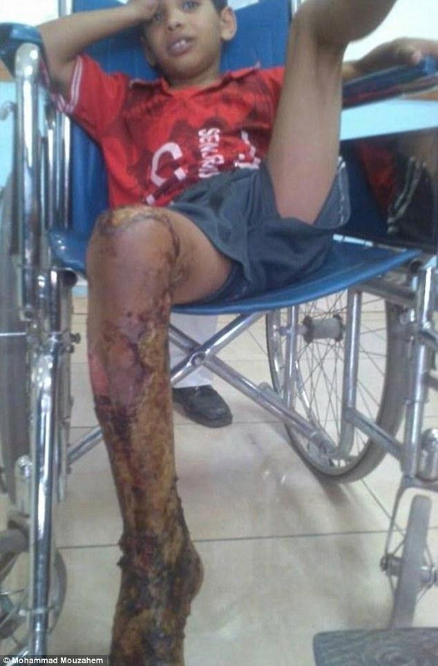 Bắt chước IS, một thiếu niên 10 tuổi bị thiêu sống