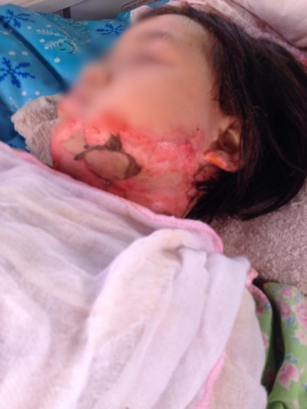 Bé gái bị bạn đốt bỏng nửa người ở trường mầm non
