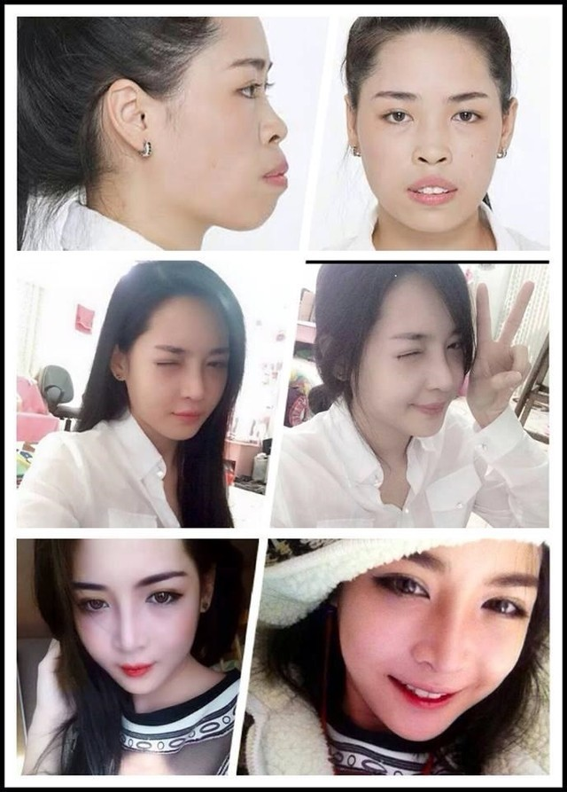 Vũ Thanh Quỳnh, phẫu thuật thẩm mỹ, làm đẹp, dao kéo